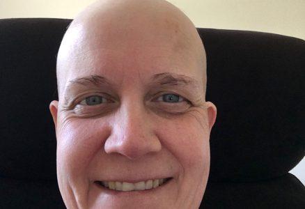 Chemo, Hair Loss, And Waiting To Grow Again